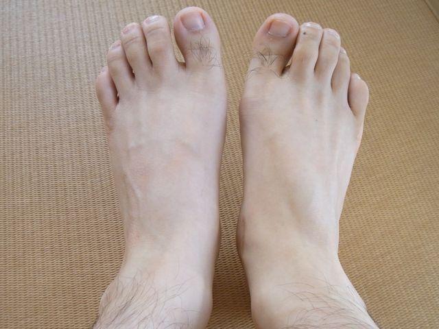 右足を手術R0014079.JPG