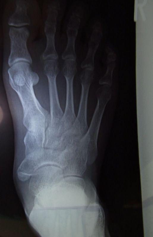 外脛(がいけい)骨.JPG