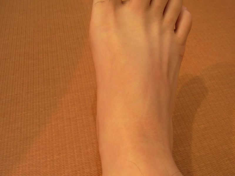 外脛骨(がいけいこつ).手術後JPG